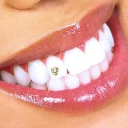Bijou dentaire Or + Swarosky